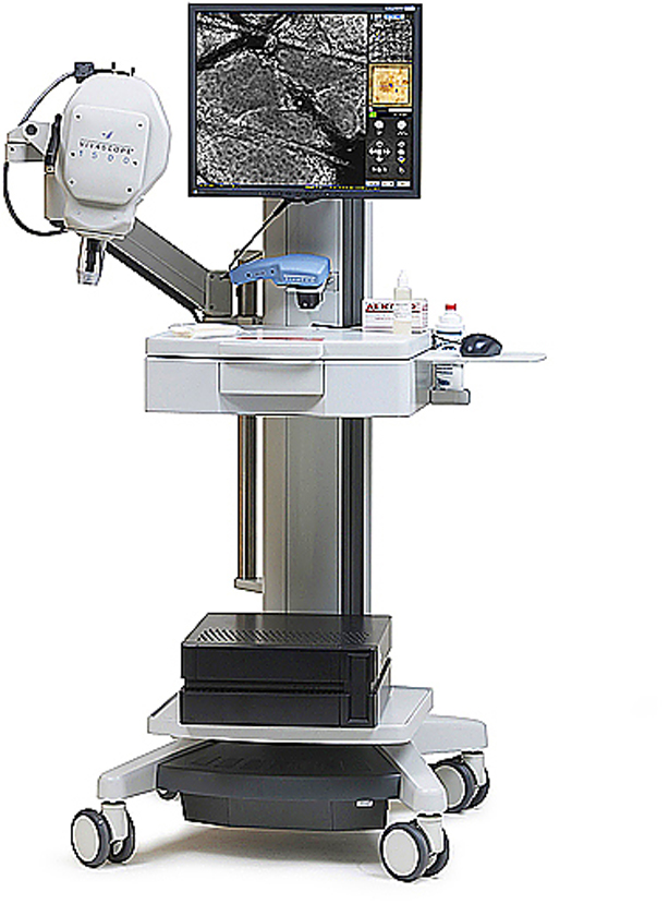 Diagnóstico no invasivo con microscopía de escaneo láser confocal ...