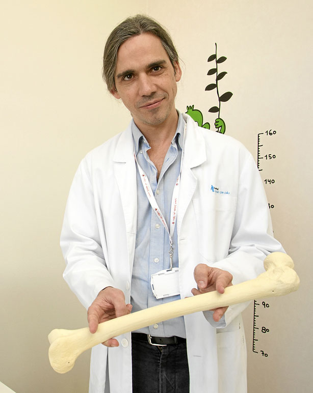 Trasplante de periostio tibial evita amputación en pseudoartrosis ...