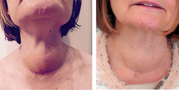 Resultado de imagen para tiroidectomía antes y despues