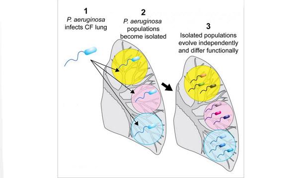 Bacterias de una misma cepa actúan distinto en pulmones con fibrosis ...