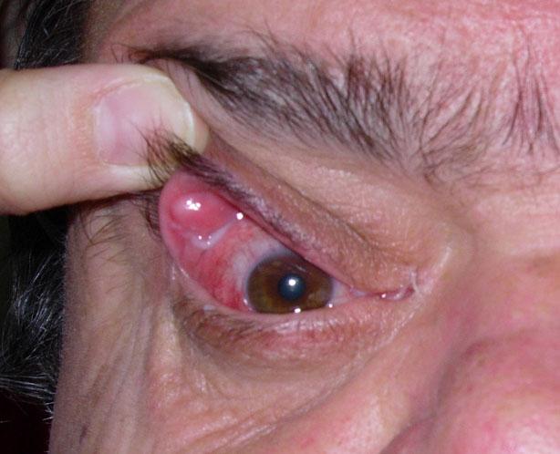 El \'Floppy\', un síndrome ocular asociado a apnea del sueño ...