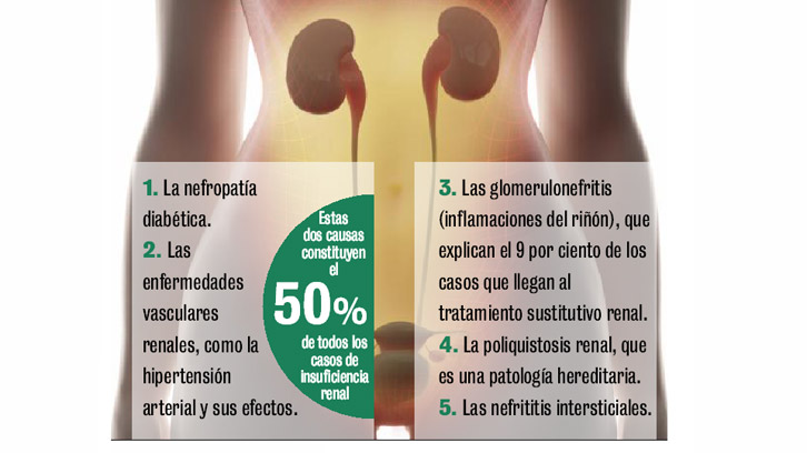 Insuficiencia renal grado 2