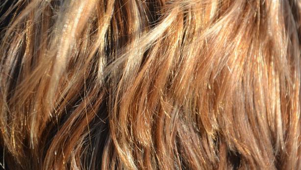 Resultado de imagen para Tiña del cuero cabelludo o capitis del tinea