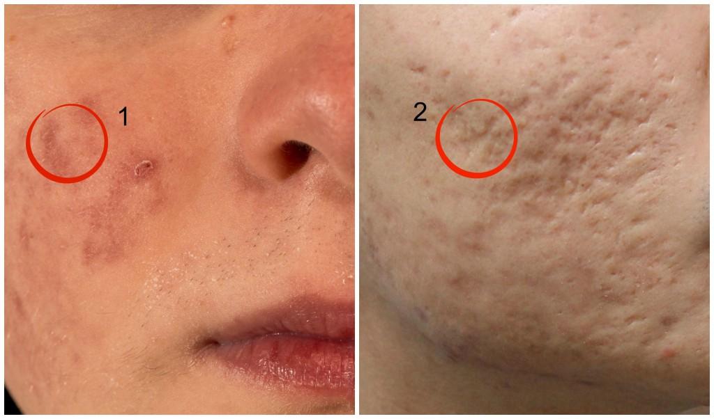 lesiones-acne