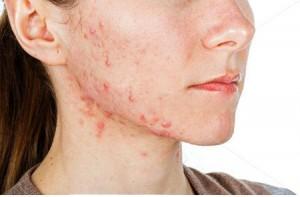 acne de la mama
